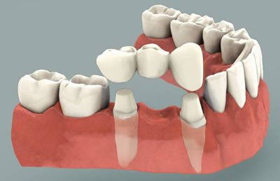 Dental Dridges Treatment in Chennai